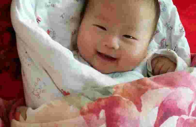 宝宝脸上长廯怎么办 这些一定要注意