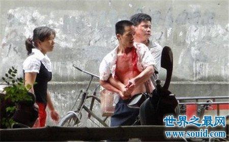 飙血哥走红网络 网友表示天干物燥 飙血哥息怒(www.souid.com)
