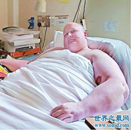 人类密码之世界上最胖的人保罗·马森  减肥成功了(www.souid.com)