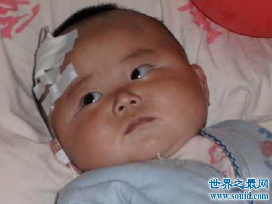 最令人震惊的大头娃娃事件,受害宝宝现状着实惋惜(www.souid.com)
