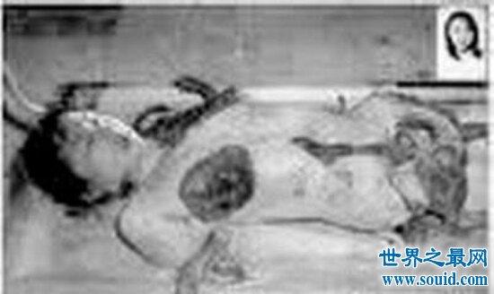 被砍去双腿双臂变成海豹人?海豹人事件到底是真是假(www.souid.com)