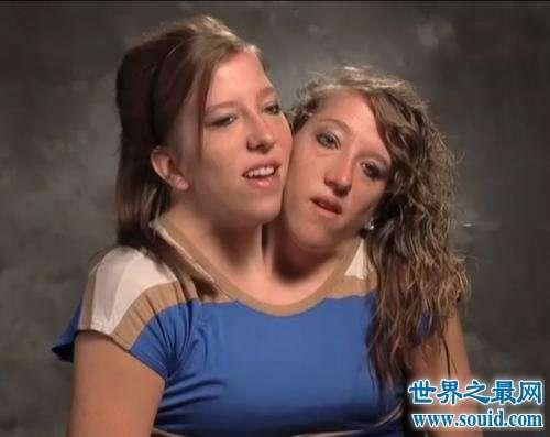 双生姐妹阿比盖尔和布列塔妮 共用一个身体结婚生子
