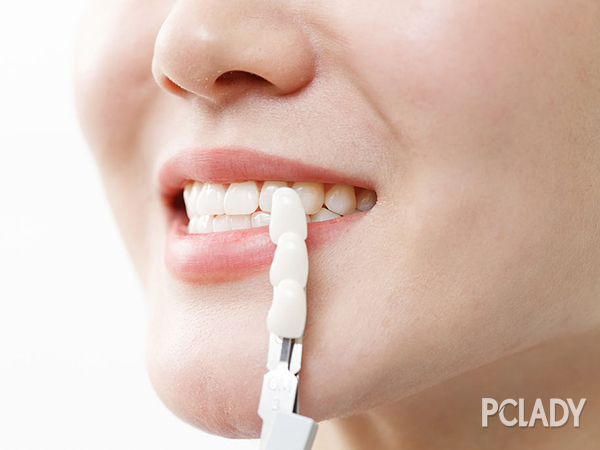 牙齿美白小妙招 快速美白牙齿的方法