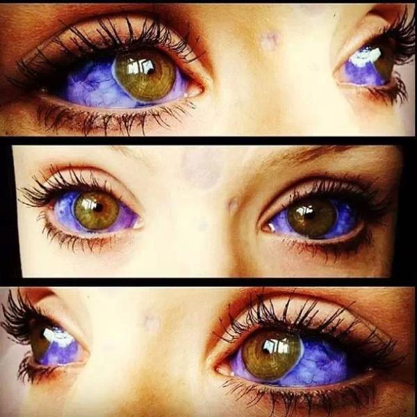 纹眼球 城会玩:眼球也要纹身!眼科专家叹太极端