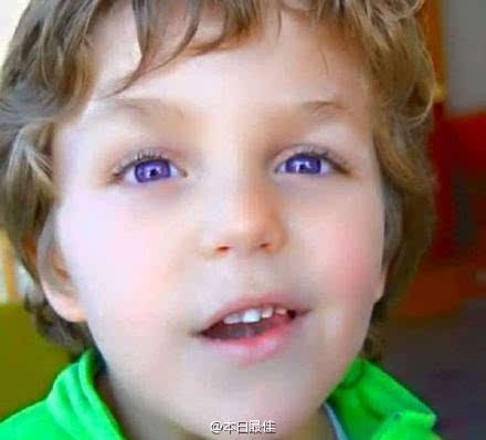 紫眼睛 紫色的虹膜—全球仅有600双这样的眼睛,怎样的幸运才能遇到