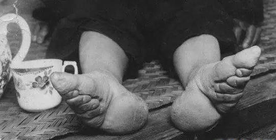古代女人为什么裹脚?裹脚是从什么时候开始的?