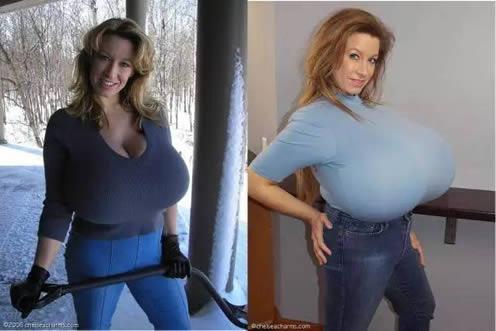全世界第一巨乳啥样:她的胸部和小女孩儿一样重