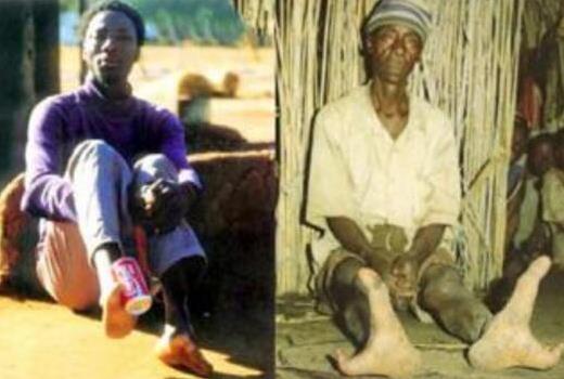 非洲鸵鸟人只有两个脚趾:全族都有螯虾综合症(图)