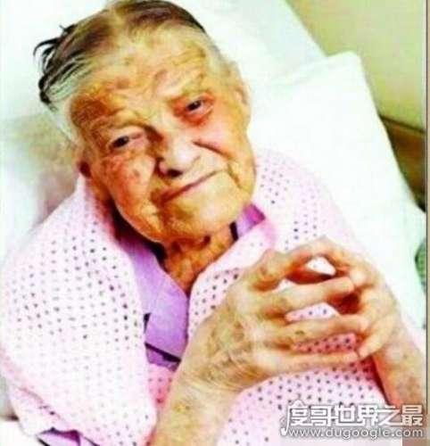 世界上最老的处女,克拉拉·梅亚德莫尔(105岁从未有过性)