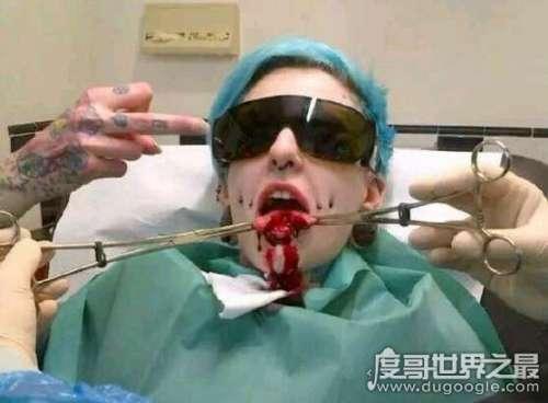 残忍恐怖的人体艺术,分舌手术竟然让接吻更有快感
