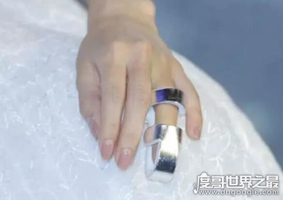 baby戴固定钢板出席活动,手指受伤让人心疼(一袭长裙美如仙)