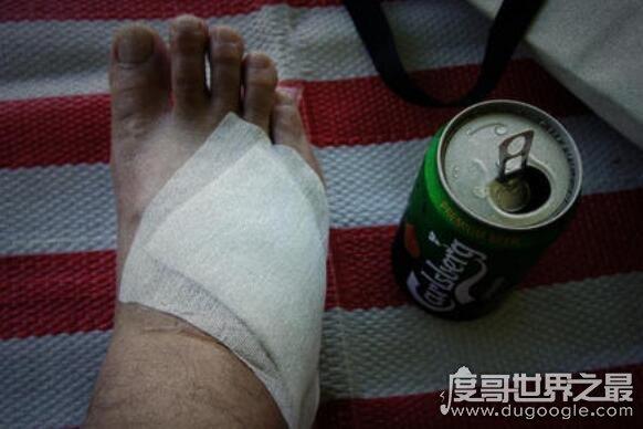 脚有这特征的人寿命比常人短,如果脚出现这些症状就要注意了