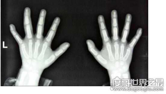 世界上最大的手指,他食指长达30厘米(整个手臂重20斤)