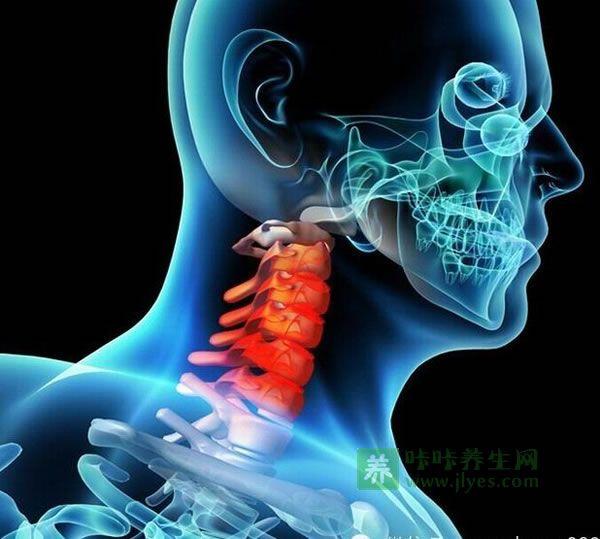 颈椎病的治疗方法