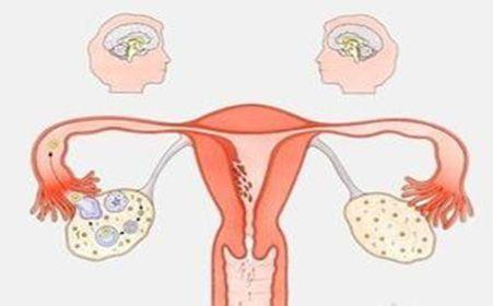 常见妇科炎症的症状和治疗