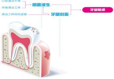 牙龈敏感如何刷牙