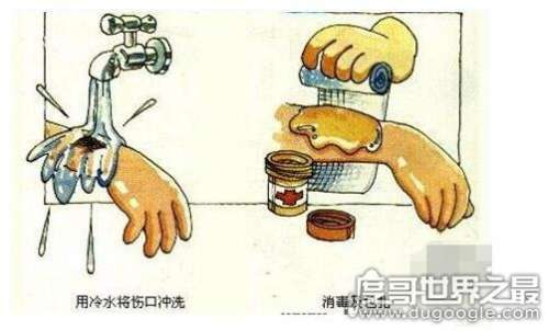 烫伤起泡怎么处理,尽量不要弄破水泡(不小心破了也不要撕皮)