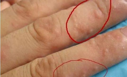 """手上长""""小水泡""""很痒,是怎么回事?原来是身体给你发的信号"""