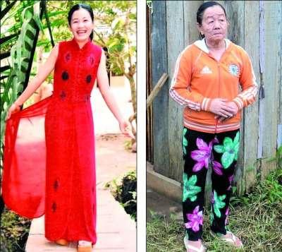 越南26岁美女乱吃药引皮肤怪病 变70岁老太(图)