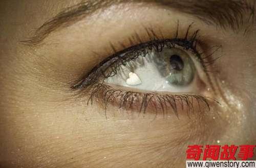 美女子眼睛嵌心形铂金片追求极端个性