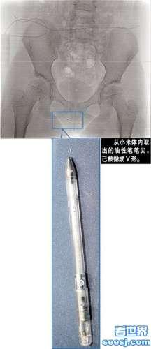 广州男生恶作剧垂直放笔 笔尖戳入女生阴部