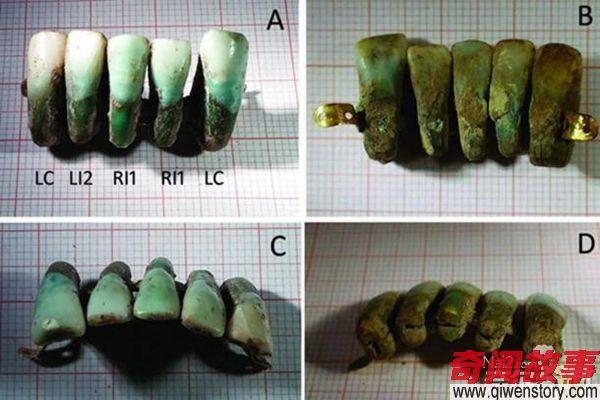 中世纪用死人牙齿制作的假牙