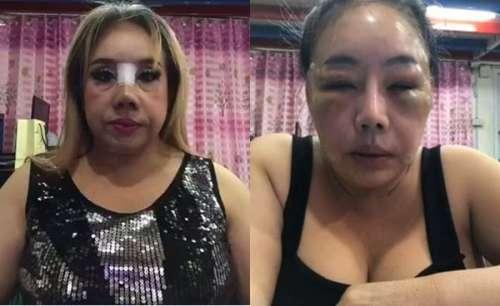 泰国60岁富婆想靠整容年轻30岁 如今养样子被吐槽没法看(图文)