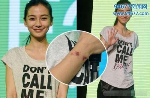 黄晓明为什么打杨颖,Angelababy身上满是伤痕真相令人心疼