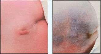 台湾1月大男婴长尾巴不做手术恐瘫痪