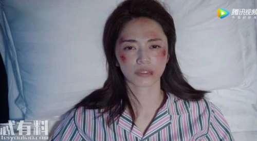 都挺好朱丽人设崩塌得知明玉受伤住院一个表情暴露内心阴暗