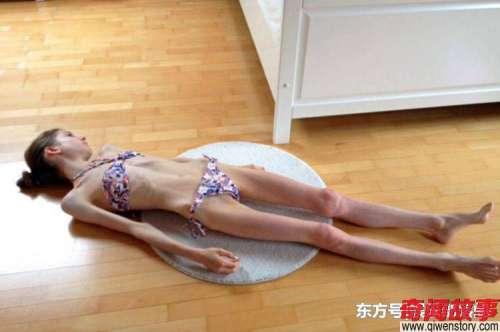 她绝食到21公斤奄奄一息在男友日夜帮助下成微胖女神