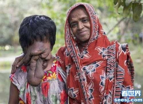 印度花季少女整张脸遭肿瘤吞噬五官全融化