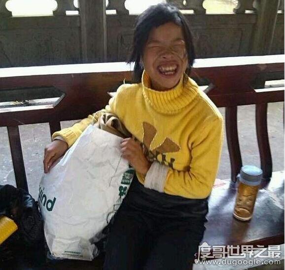 雅安网红琼姐的资料简介,轻度残障人士被包装成网红(交帅气男友)