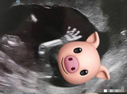 胡杏儿宣布怀二胎李氏农场可以开张了