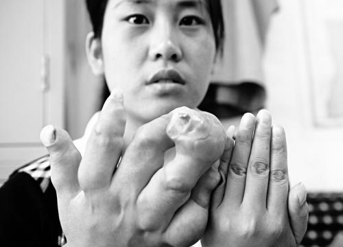 25岁女子患怪病骨横着长手指粗如婴儿手臂图